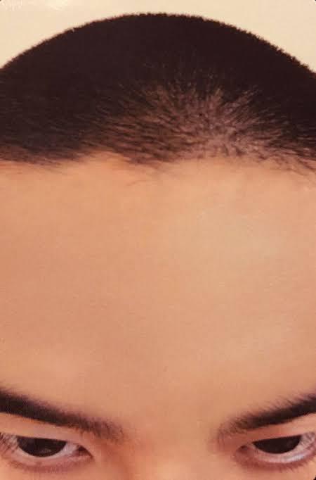 WTB kyungsoo forehead