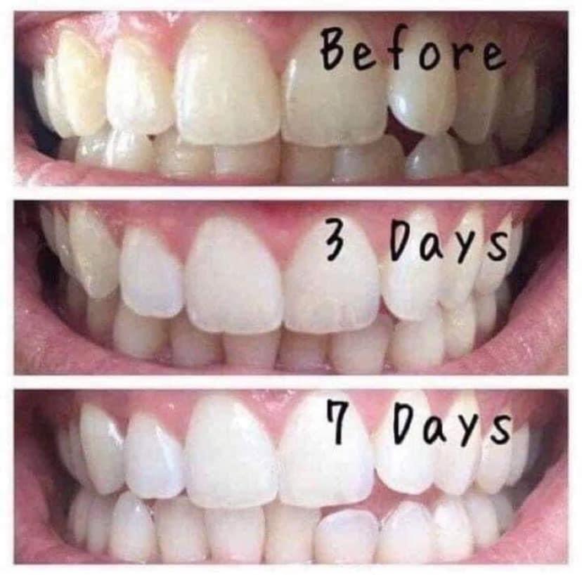 AP 24® Whitening Fluoride-Free Toothpaste