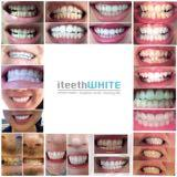 iteethwhite.official